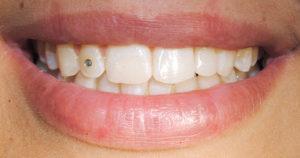 IMPIANTO dente mancante