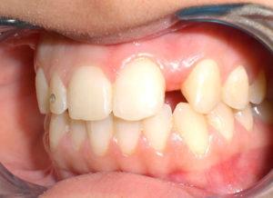 IMPIANTO dente singolo