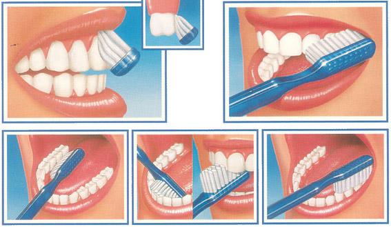 igiene orale Brindisi