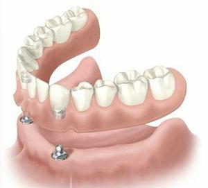 dentiera semifissa attacchi a sfera