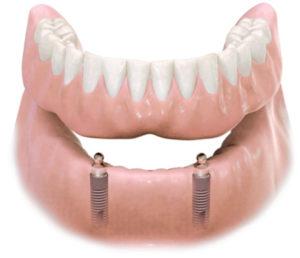 protesi dentale semifissa