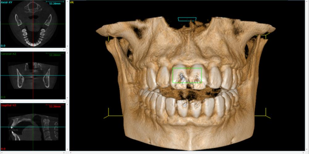Chirurgia guidata in implantologia